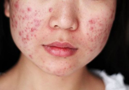 Acne Vulgaris: A Predator of Oily Skin.