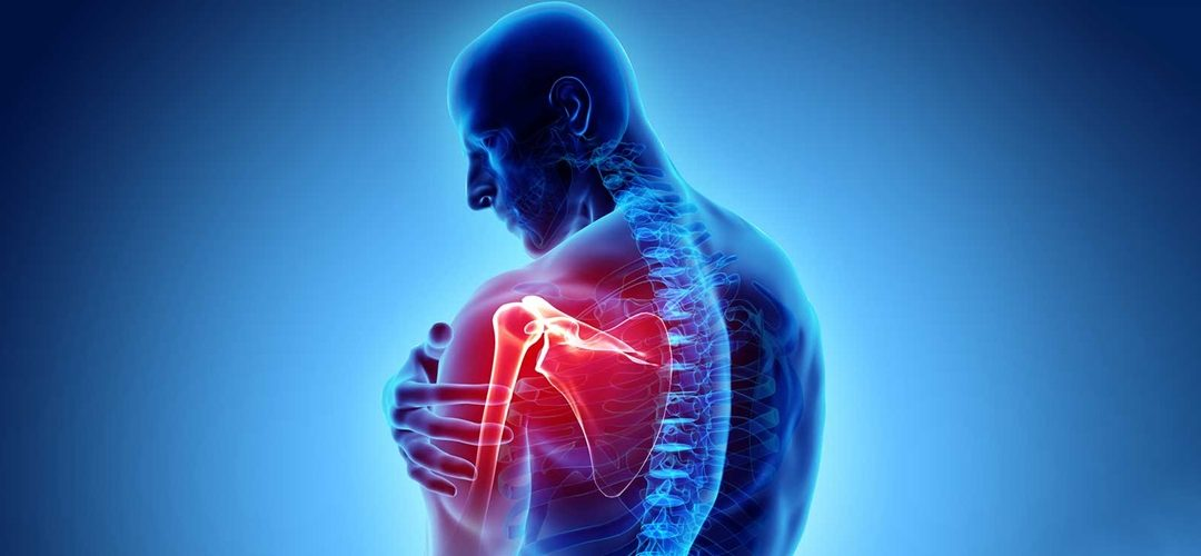 Living with Agony and stiffness – Arthritis